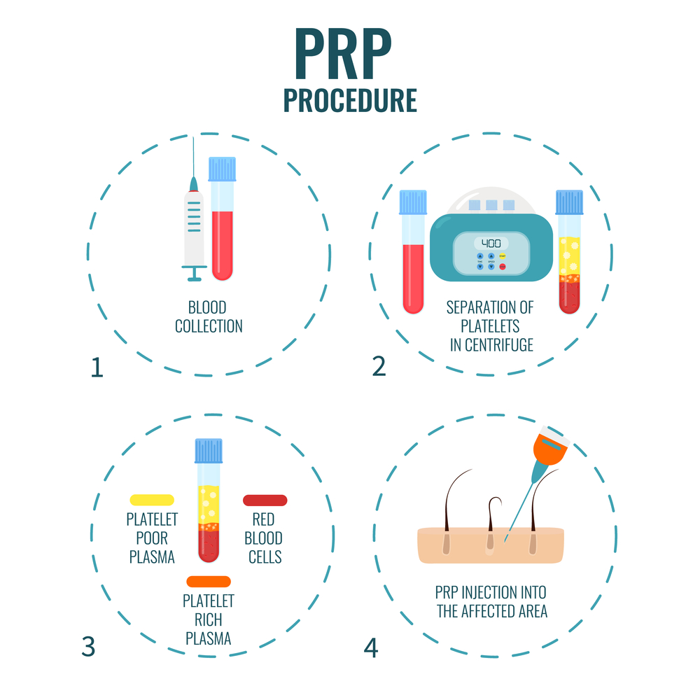 How does prp work?