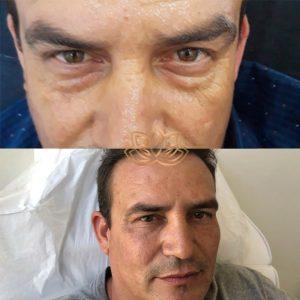Eye bags man