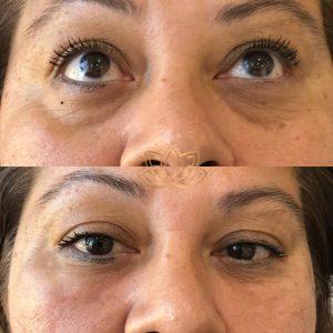 Eye bags solution