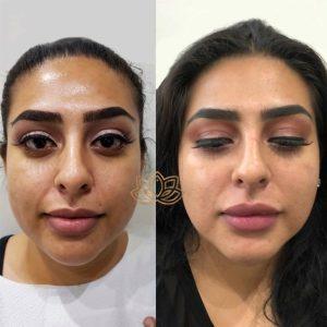 Eye bags solution in tijuana