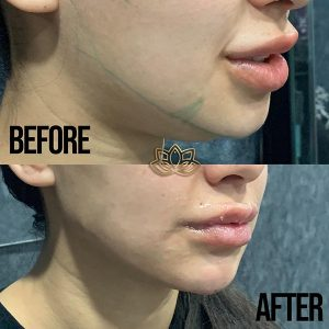 Jaw contouring solution