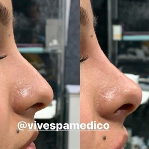 Profiled Nose