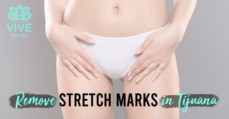 Read more about the article The truth about stretch marks