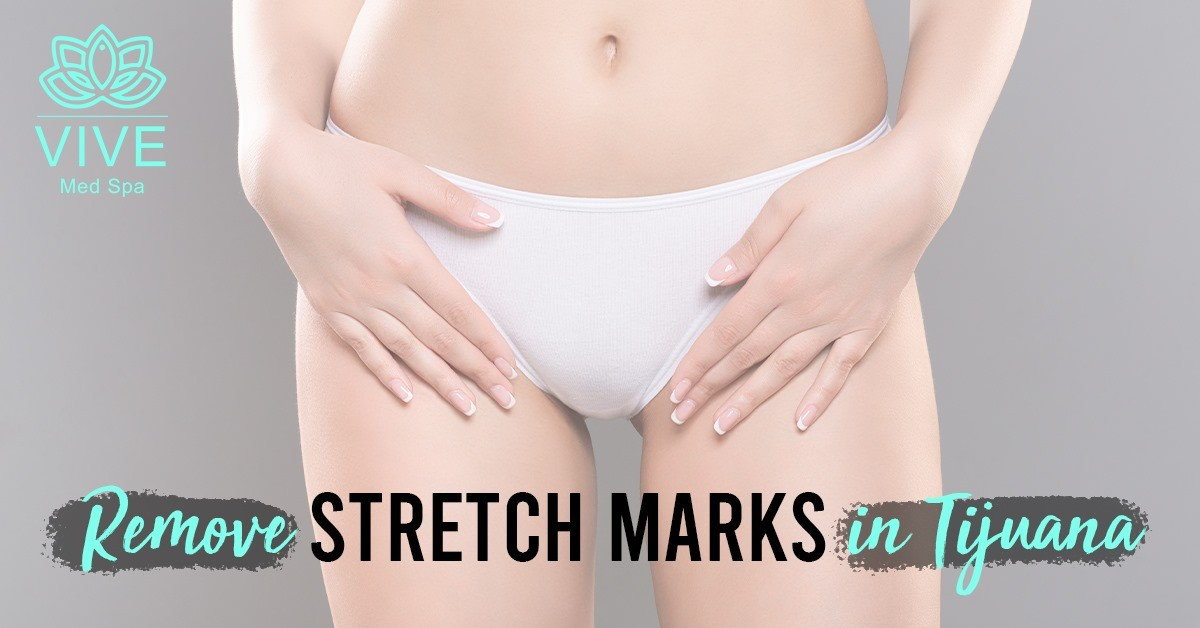 You are currently viewing The truth about stretch marks