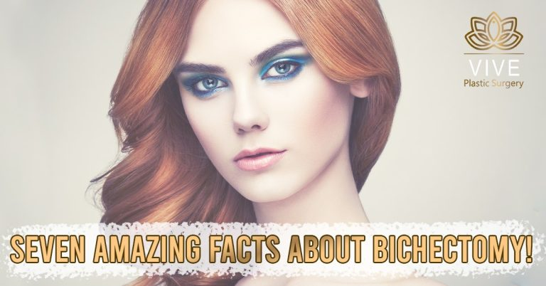 Read more about the article Beautiful face with Bichectomy at Tijuana