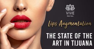 Read more about the article Get the most beautiful lips