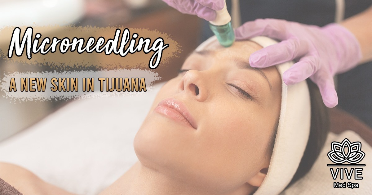 You are currently viewing Perfect skin with Microneedling