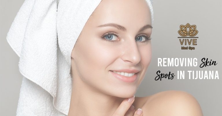 Read more about the article How can I remove freckles and spots from my face?