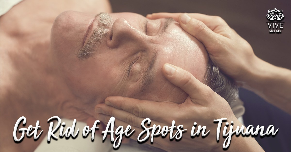 You are currently viewing Eliminate age spots from your skin