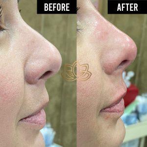 Profiled nose tijuana