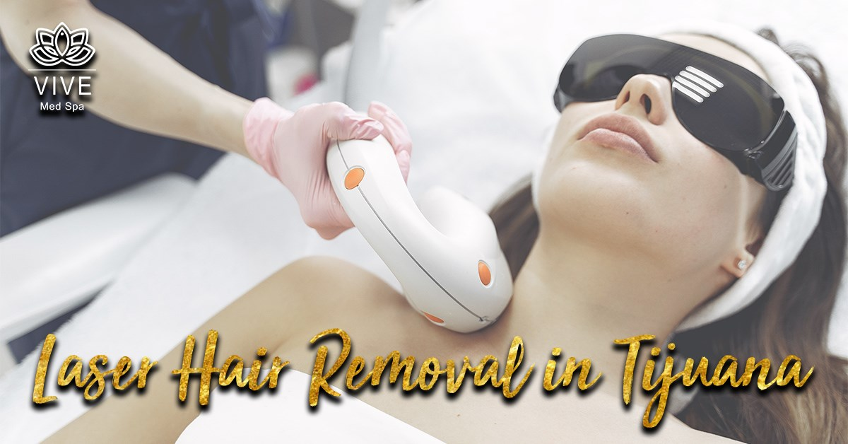 You are currently viewing The best methods for hair removal in Tijuana