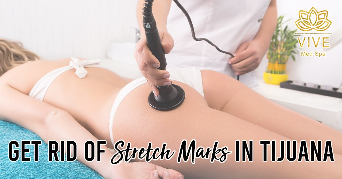 You are currently viewing Erase stretch marks in Tijuana
